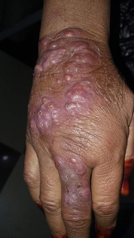 leshmaniasis-new-photo-to-help-in-diagnosis.jpg